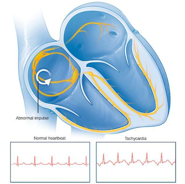 Нормальный сердечный ритм и тахикардия