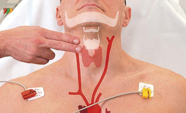 Техника массажа сонной артерии