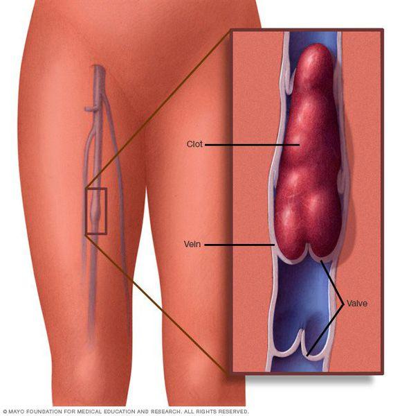 Сгусток тромбоцитов
