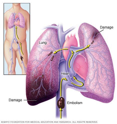 Тромбоэмболии лёгочной артерии