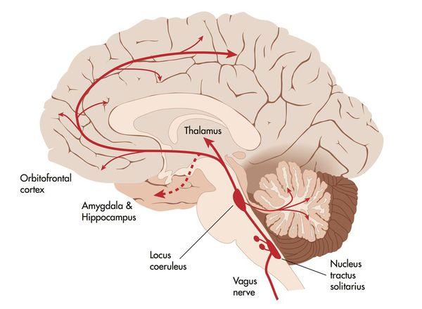 Системы головного мозга, участвующие в развитии вегетативного криза