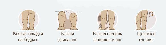 Симптомы врожденного вывиха бедра