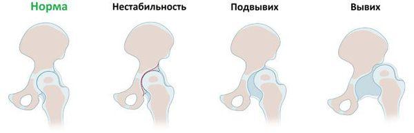Степени прогрессирования вывиха тазобедренного сустава