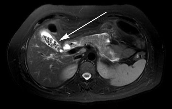МРТ-снимок желчнокаменной болезни
