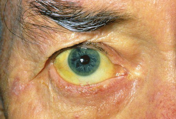 Пожелтение кожи и склер при развитии осложнений