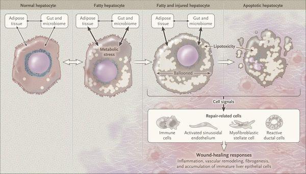 Некроз клеток печени