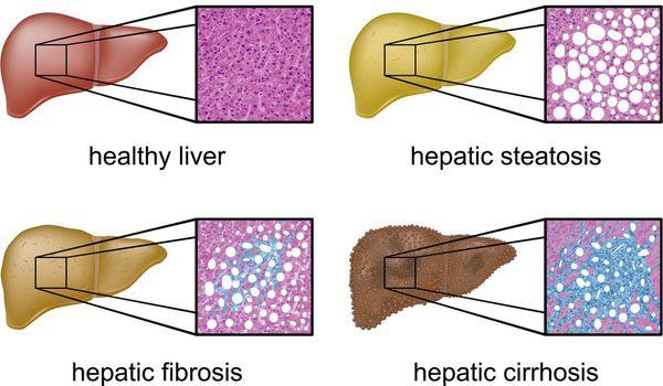 Патологические изменения ткани печени