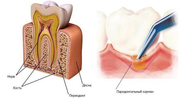 Строение зуба (периодонт и пародонтальный карман)