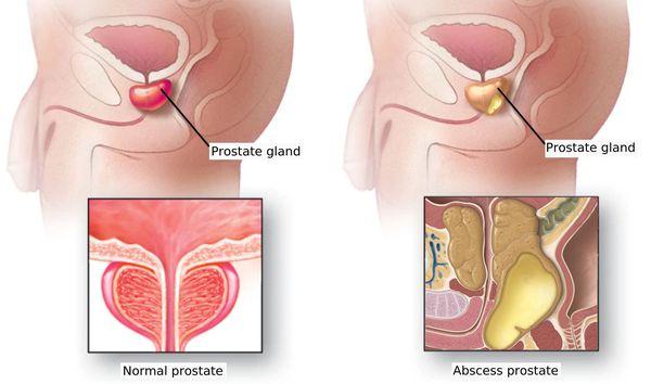 Prostatitis blokád