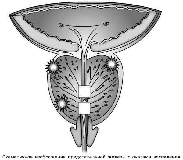 A prostatitis szuperhooling kezelése