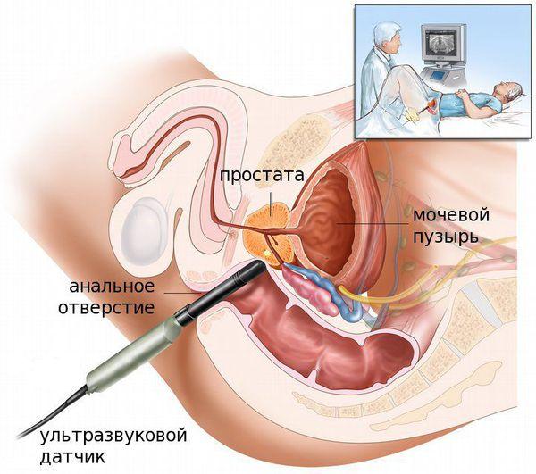 A prosztatitis befolyásolja a beleket