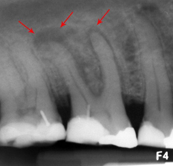 Абсцесс зуба на рентгеновском снимке