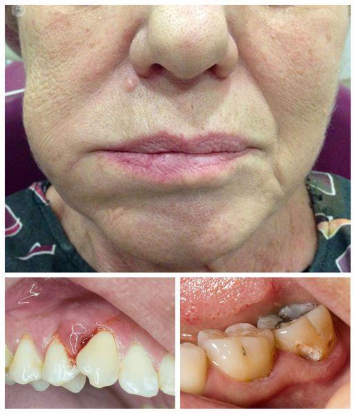 Признаки абсцесса зуба