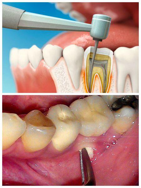 Варианты оперативного лечения абсцесса зуба