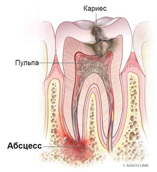 Воспаление тканей под корнем зуба