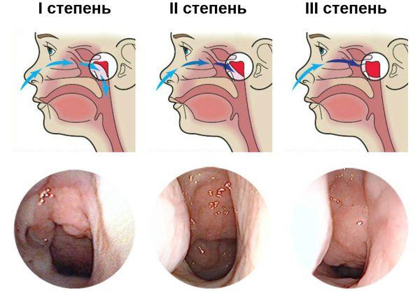 Три степени увеличения аденоидов