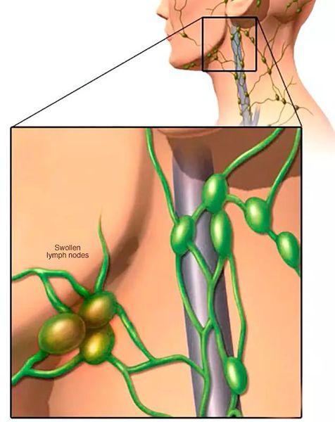 Воспаление подчелюстных лимфоузлов