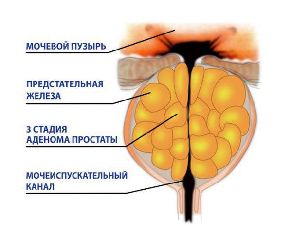 III стадия аденомы предстательной железы