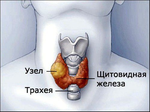 Узел щитовидной железы может сдавливать гортань