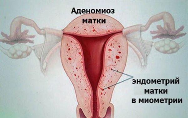 Разрастание эндометрия матки