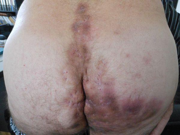 Актиномикоз крестцово-копчиковой области с переходом на параректальную и  ягодичные области, инфильтративная стадия