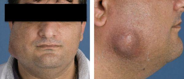 Деформация лица при челюстно-лицевом актиномикозе