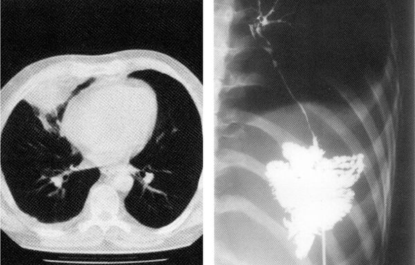 КТ и фистулография, указывающие на торакальный актиномикоз