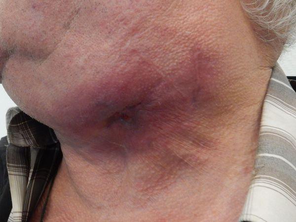 Посттравматический актиномикоз нижней челюсти, свищевая стадия