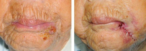 Результаты лечения челюстно-лицевого актиномикоза