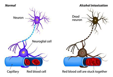 Здоровый и повреждённый нейрон