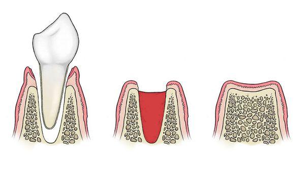 Нормальный процесс заживления после удаления зуба