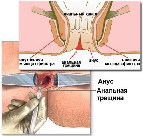 Заболевания при анальном сексе симптомы