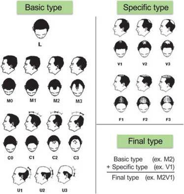 Базовая и специфическая (BASP) классификация