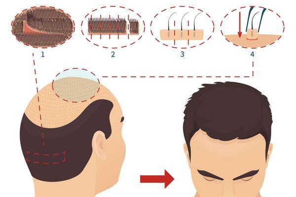 Хирургическое восстановление волос