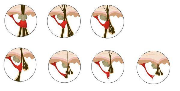 Миниатюризация волосяных фолликулов