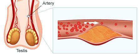 Атеросклероз сосудов тестикул