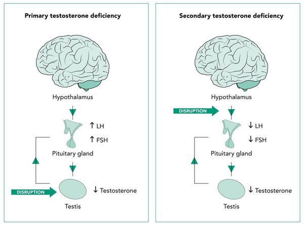 Первичный и вторичный андрогенный дефицит