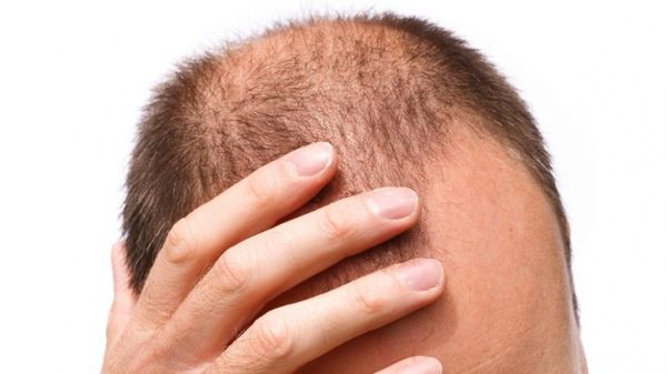 Выпадение волос, связанное с нехваткой мужских половых гормонов