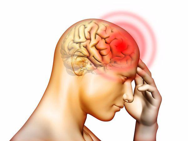 Головная боль при церебральных аневризмах