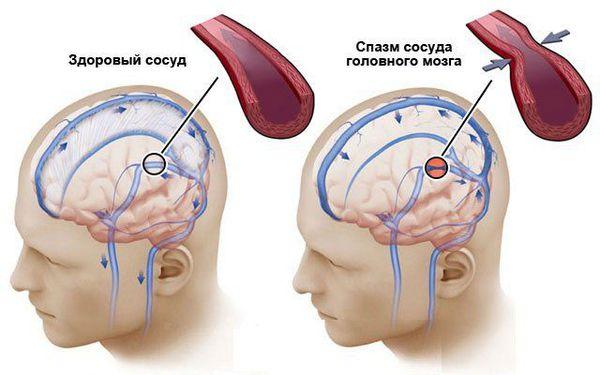 Сужение мозговых артерий