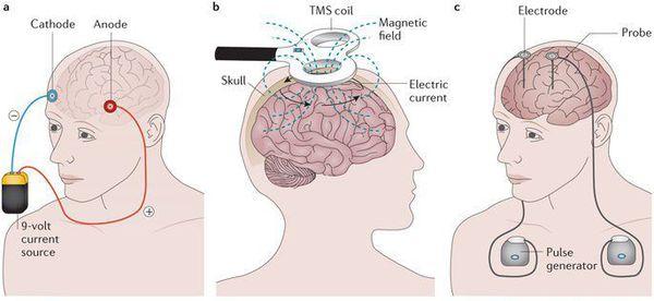 Применение глубокой стимуляции мозга