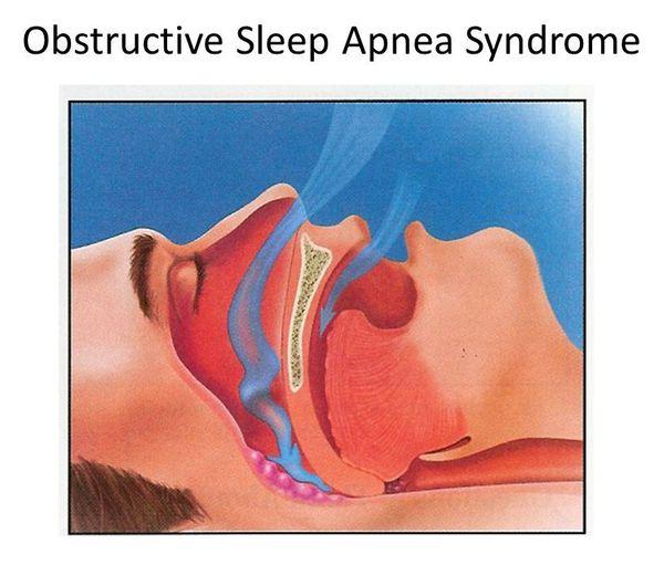 Cиндром обструктивного апноэ во сне