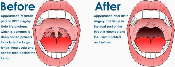 Гортань до операции и после