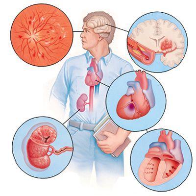 Поражение органов при длительной артериальной гипертензии