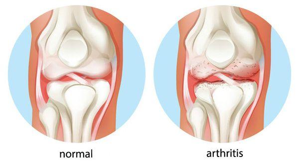 Артрит хронический - симптомы и лечение