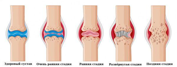 Клинические стадии ревматоидного артрита