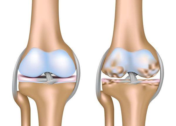 Схематическое изображение коленного сустава с нормальным хрящом (слева) и пораженным артрозом (справа)