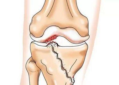 Формирование артроза в результате перелома внутреннего мыщелка большеберцововой кости