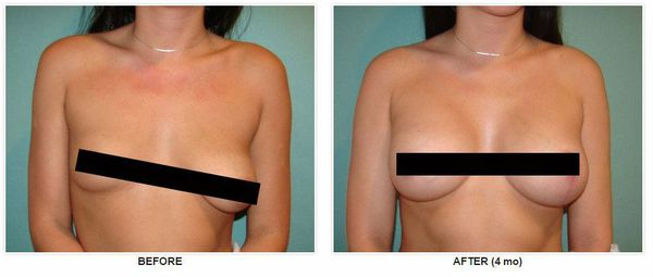 Хирургическая коррекция асимметрии молочных желёз