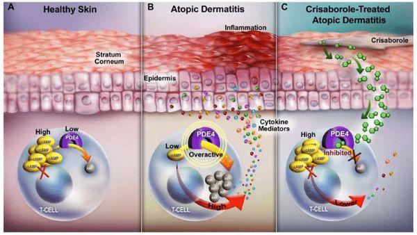 Механизм появления атопического дерматита